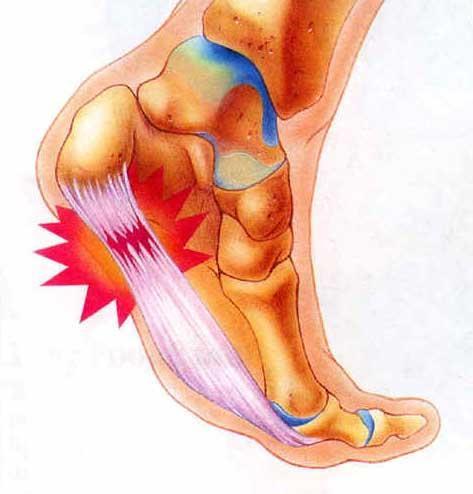 Боль в пятке (болит пятка) - Причины, симптомы