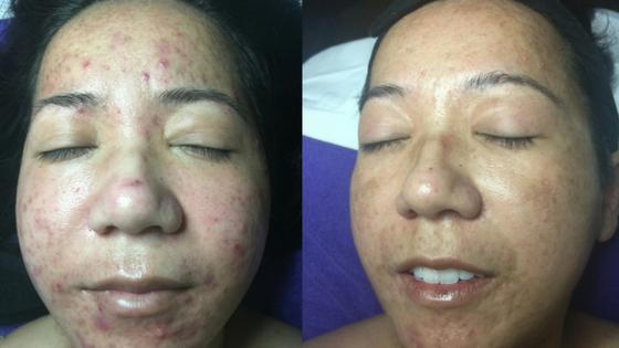 Vivian Before and After Enhance Therapy at Beauty Journey