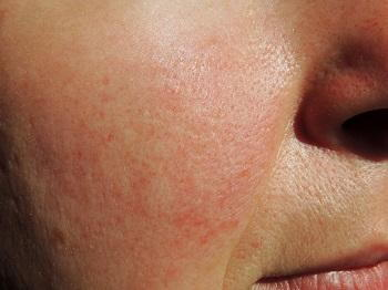 Do You Have Rosacea