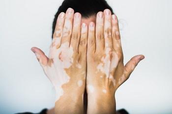 Treating Vitiligo