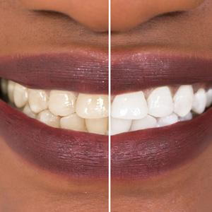 What You Should Know About A Home Teeth Whitening Kit