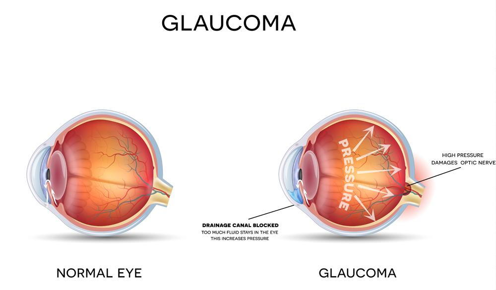 difference between normal eye and eye with glaucoma