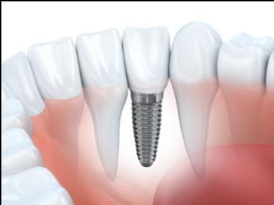 dental implants north kansas city