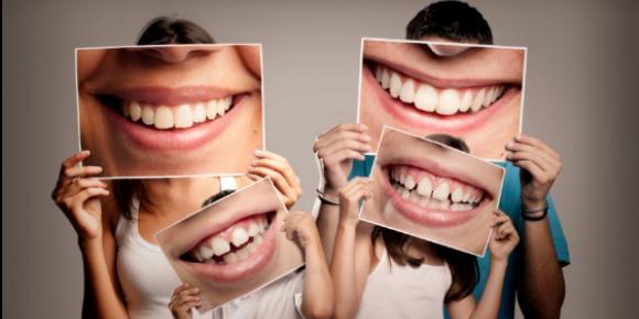 Aluminum Foil Teeth Whitening And Diy Hacks That Harm Teeth