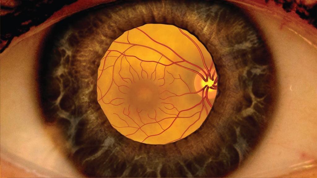 505a5d63eb8 Dilated Eye Exams