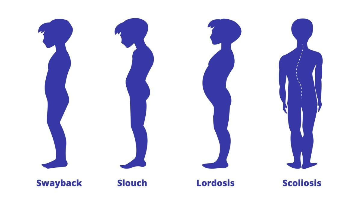 Swayback and other posture problem treatments in Massachusetts