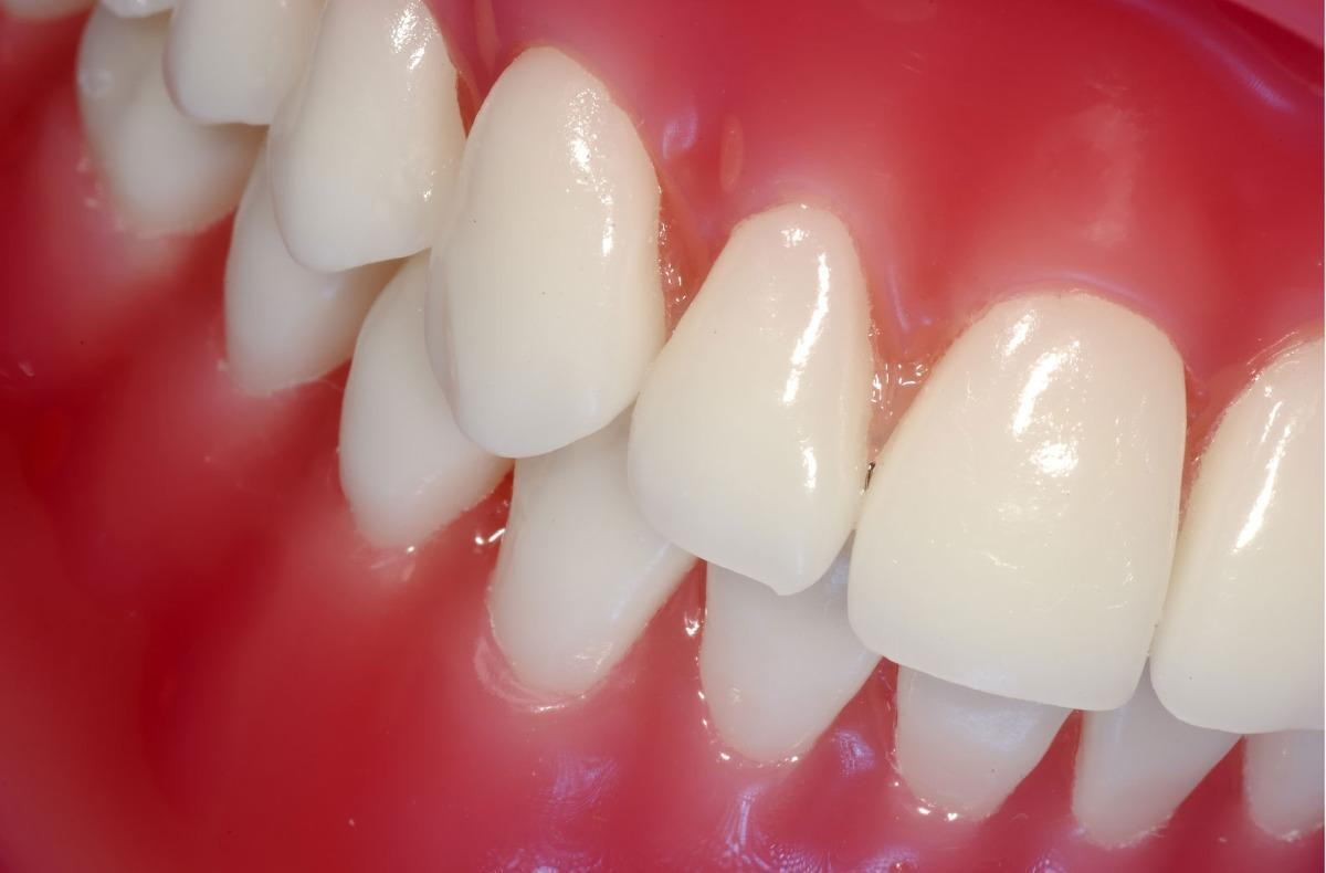How Veneers Can Transform Your Smile