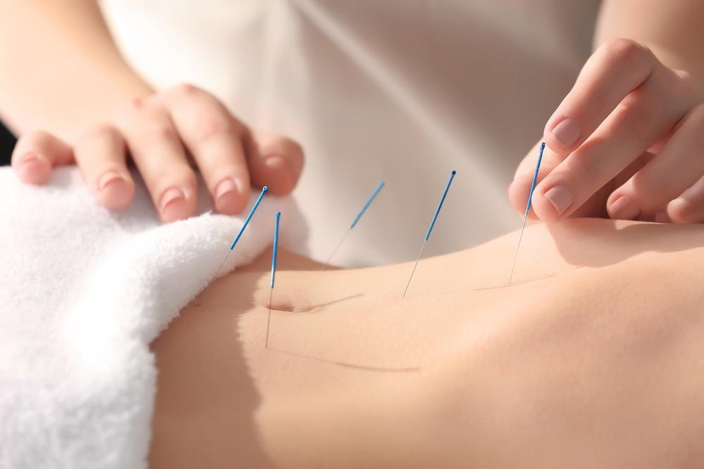 Acupuncture needles being used in Colorado Springs.