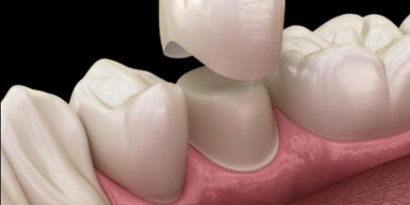 What Are the Common Causes of Bite Pain on a Crowned Tooth?