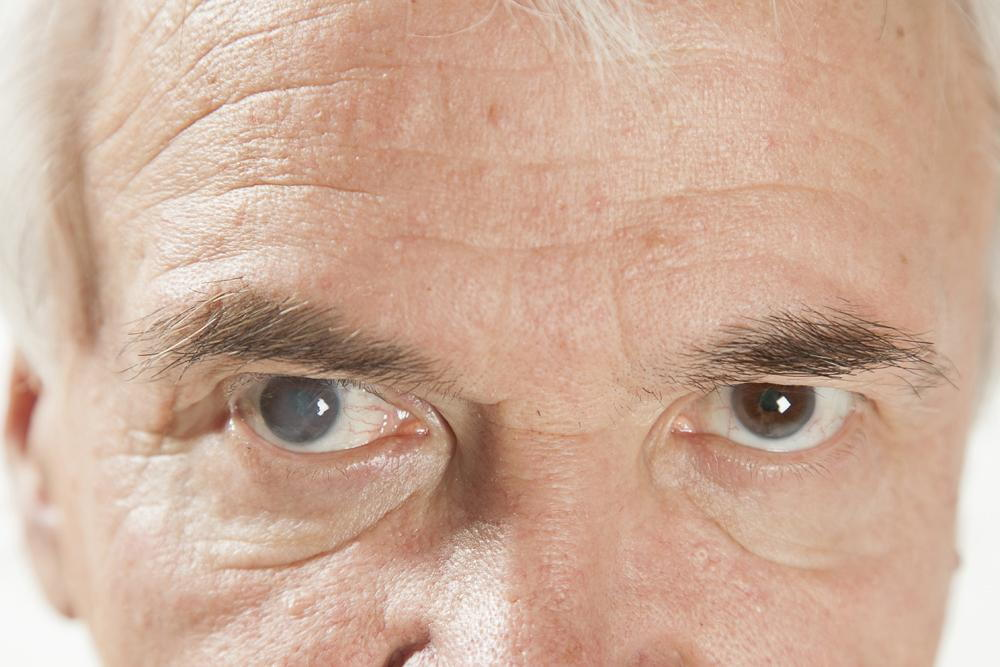 elderly man with severe cataract in one eye