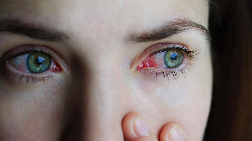 woman suffering from pink eye