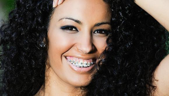 orthodontics, braces, adult braces