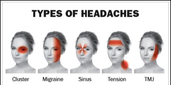 Headaches And Tmj