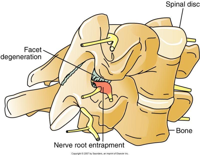 carisoprodol for pinched nerve