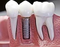 Dental Implants Kissimmee FL