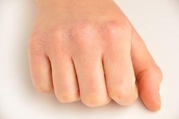 Chapped hands can be painful