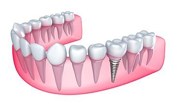 Dental Implants Cartoon