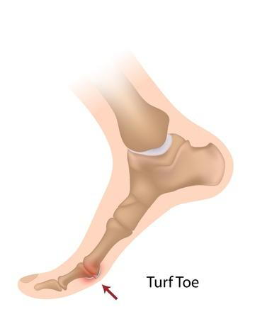 drawing showing where turf toe happens on the joint