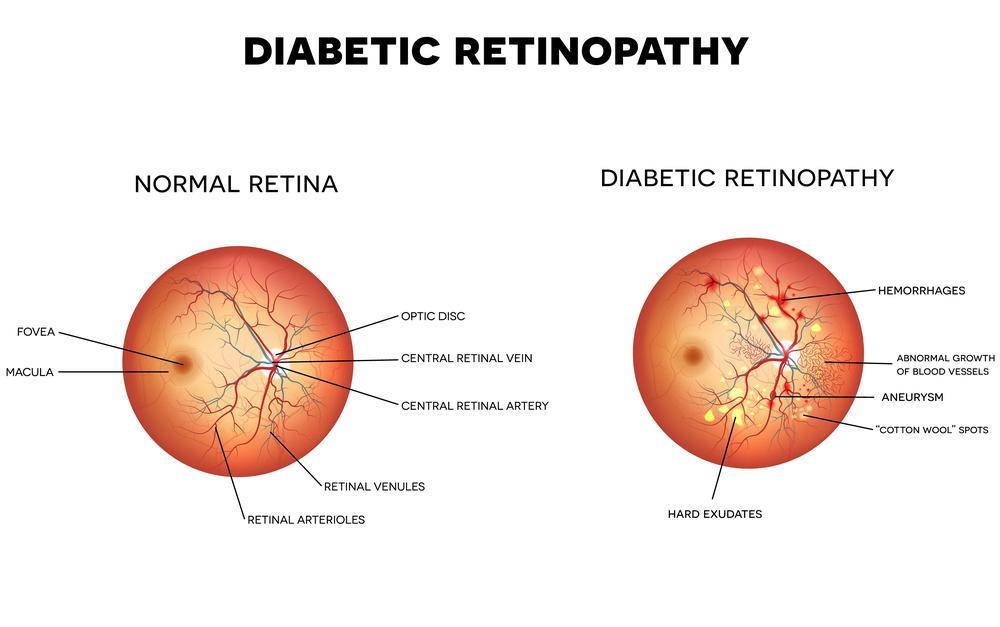 Diabetic Retinopath