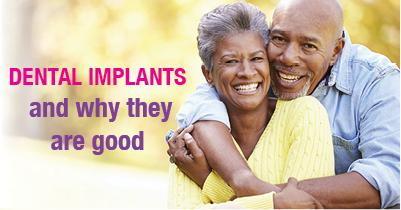 dental implants-