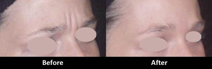 Botox Dysport Xeomin Encino CA