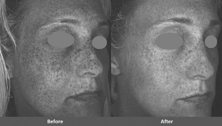 Forever Young BBL IPL photofacial before and after