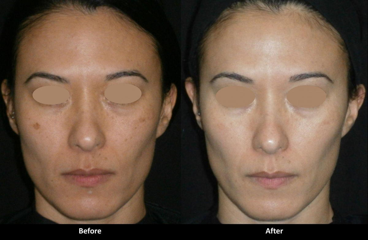 Can IPL Photofacial Treatments be Done on Asian Skin?