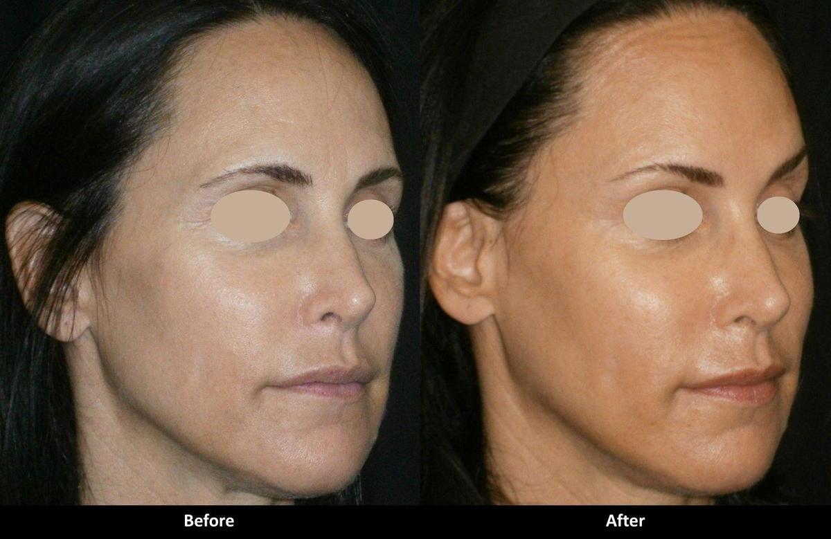 Encino Juvederm Botox Voluma