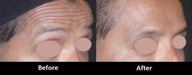 Botox Injections Encino CA