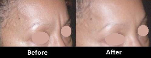 Botox Procedure Before and After