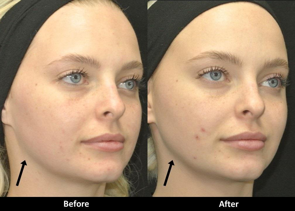 Laser Skin Tightening Before and After