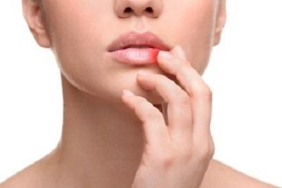 Cold Sores can appear on the outside of the lip
