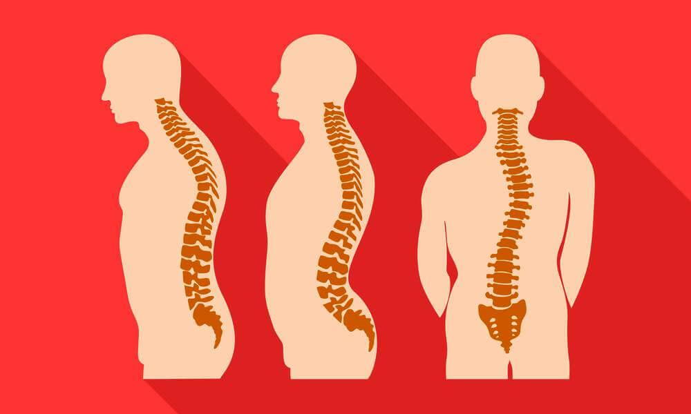 can a chiropractor help with scoliosis