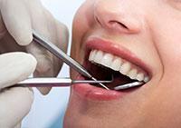 Dental Exam Washington, Shelby Township, Romeo, MI