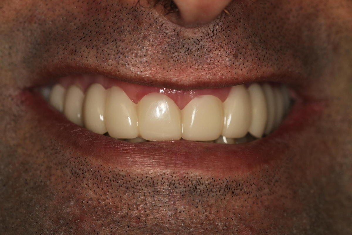 Snap-On Smile After