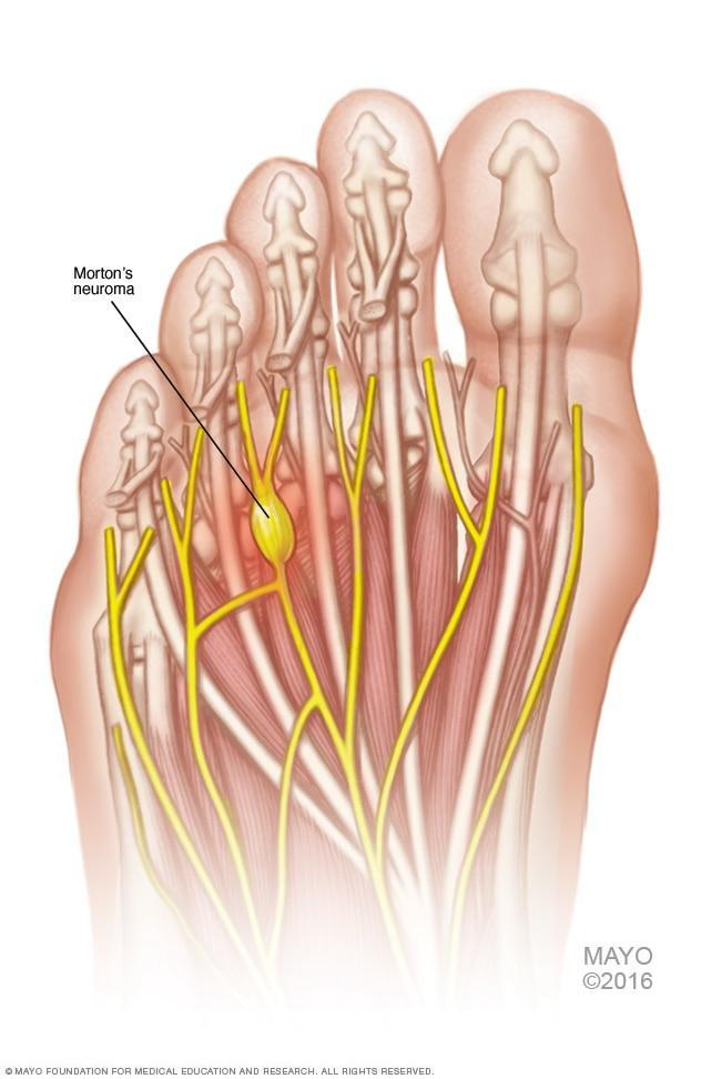 Image result for neuroma foot