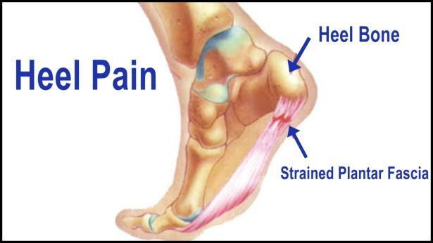 Achilles Tendon Heel Pain