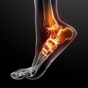 http://newsfix.ca/wp-content/uploads/2013/05/Ankle-sprains.jpg