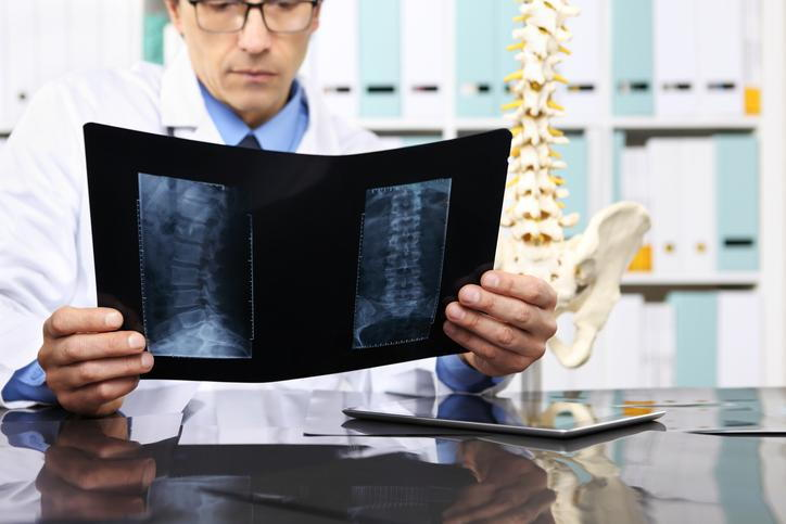 When You Suffer a Slipped Disc Injury in an Auto Accident