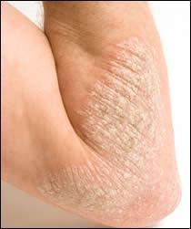 eczema что это