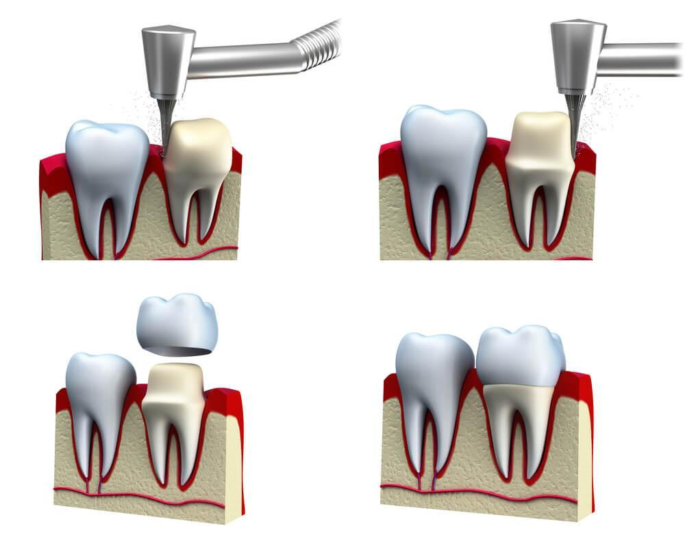 What is restorative same day crowns?