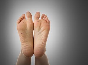 Foot Warts