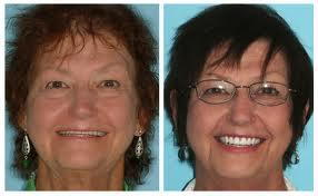 implant supported denture & overdenture