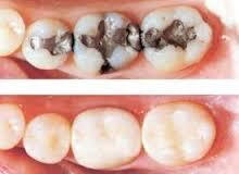 White, tooth-colored filling, composite filling