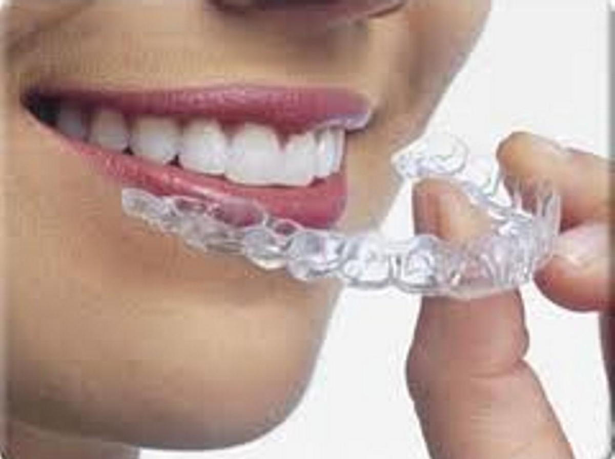 Clear Correct aligner Chicago