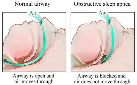 Obstructive sleep apnea Chicago