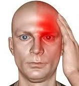 Botox for pain of migraine