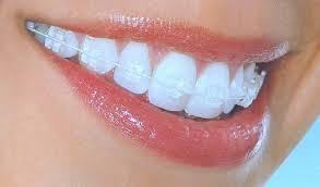 Adult orthodontic treatment with clear braces