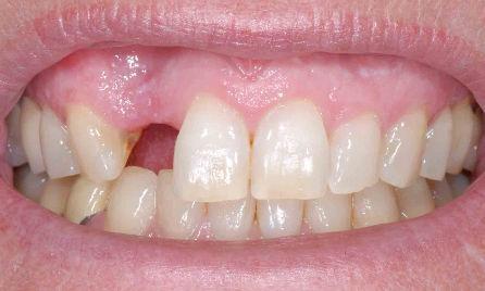 تعويضات الأسنان المفقودة