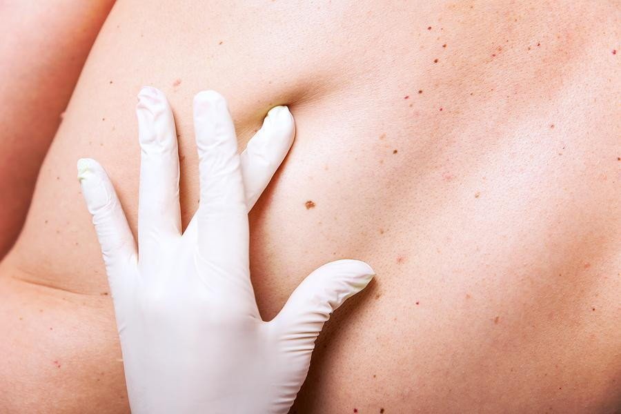 Mohs Surgery for Skin Cancer